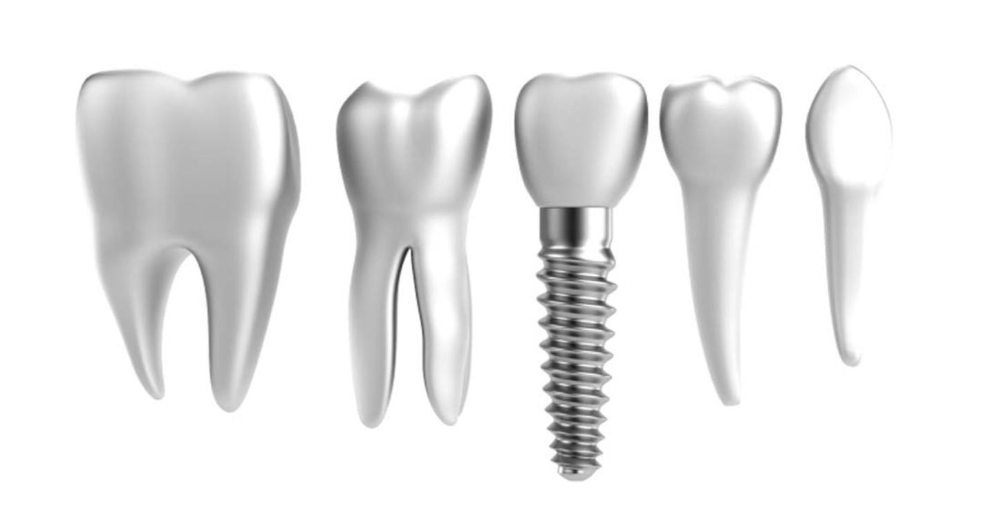 implant-image